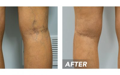 Vein Clinic Discusses Varicose Vein Treatment in Houston