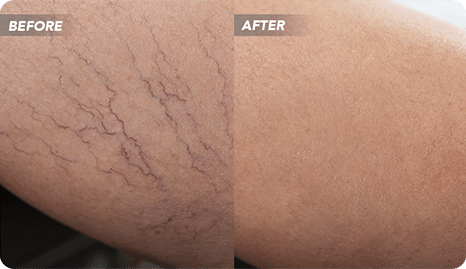 Best Varicose Vein Treatment in River Oaks, Texas