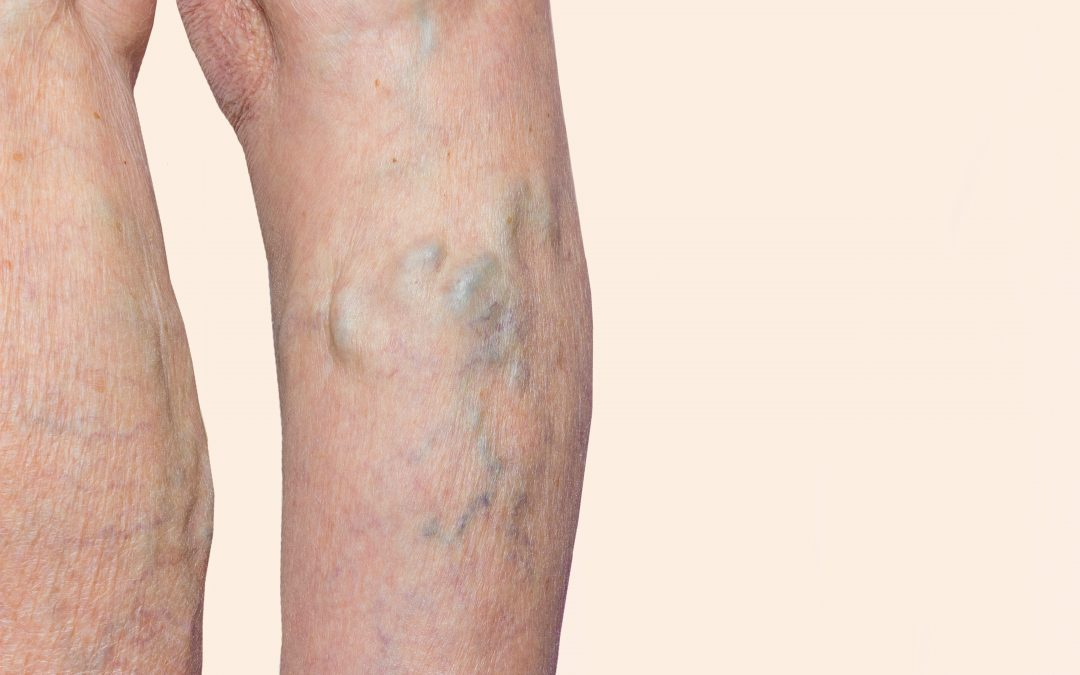 What are the Best Treatment Options at a Varicose Vein Center Near Me in Texas 2020?
